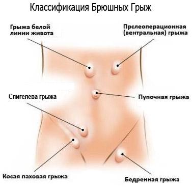 Как самостоятельно определить варикоцеле